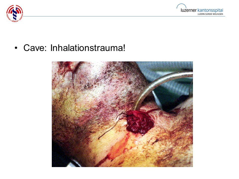 Cave: Inhalationstrauma!