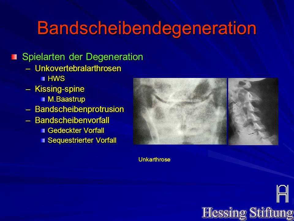 Bandscheibendegeneration Spielarten der Degeneration –Unkovertebralarthrosen HWS –Kissing-spine M.Baastrup –Bandscheibenprotrusion –Bandscheibenvorfal