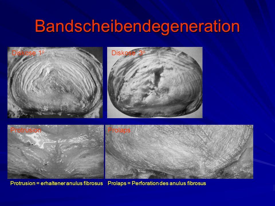 Bandscheibendegeneration Diskose 1 o Diskose3 o ProtrusionProlaps Protrusion = erhaltener anulus fibrosusProlaps = Perforation des anulus fibrosus