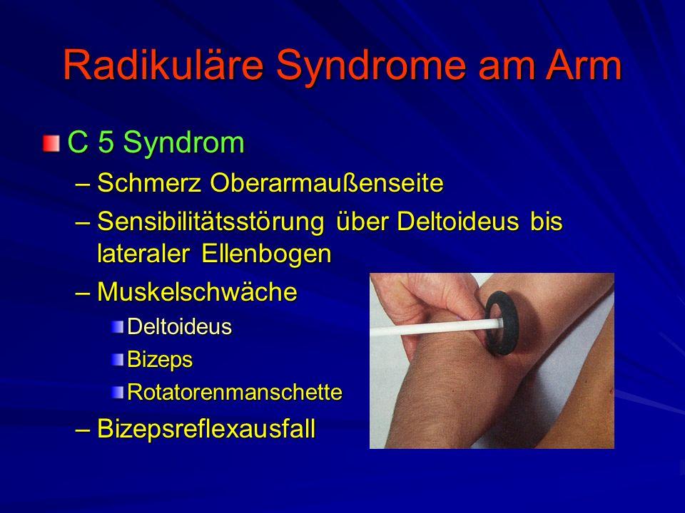 Radikuläre Syndrome am Arm C 5 Syndrom –Schmerz Oberarmaußenseite –Sensibilitätsstörung über Deltoideus bis lateraler Ellenbogen –Muskelschwäche Delto