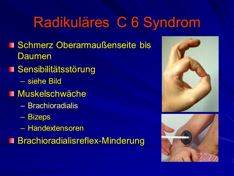 Radikuläres C 6 Syndrom Schmerz Oberarmaußenseite bis Daumen Sensibilitätsstörung –siehe Bild Muskelschwäche –Brachioradialis –Bizeps –Handextensoren