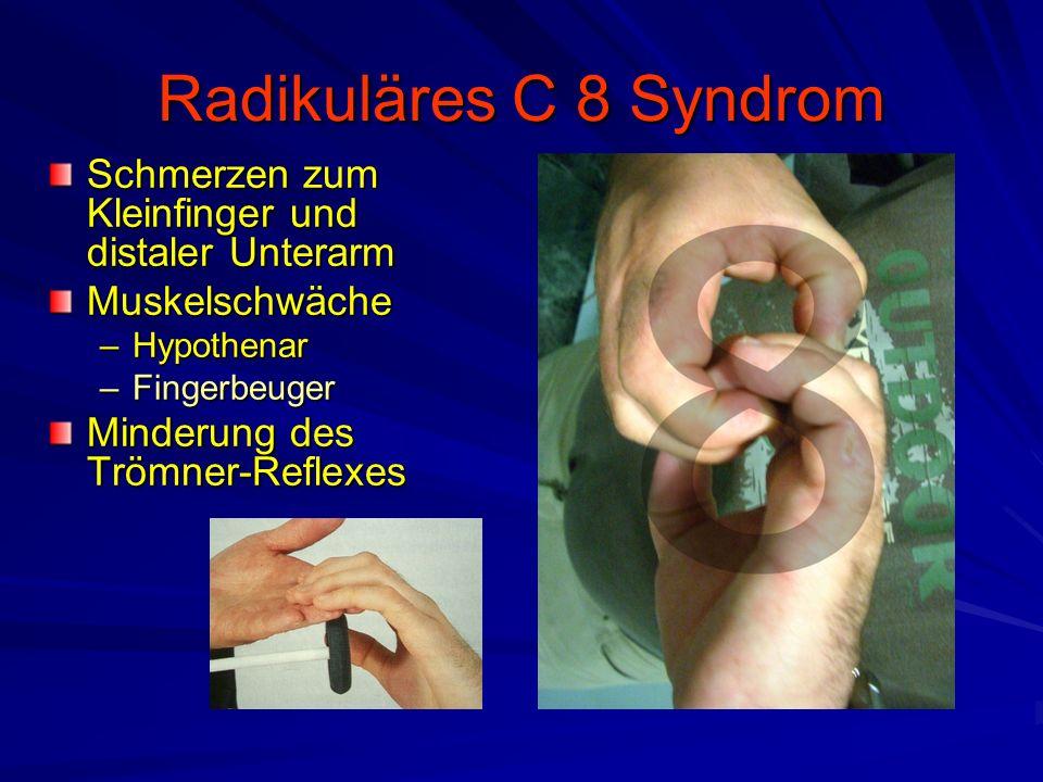 Radikuläres C 8 Syndrom Schmerzen zum Kleinfinger und distaler Unterarm Muskelschwäche –Hypothenar –Fingerbeuger Minderung des Trömner-Reflexes