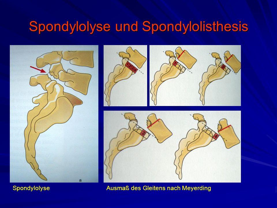 Spondylolyse und Spondylolisthesis Ätiologie –Angeborene Dsyplasie Dysplasie der dorsalen Elemente –Axiale Ausrichtung der Gelenkfortsätze Dysplasie der proc.