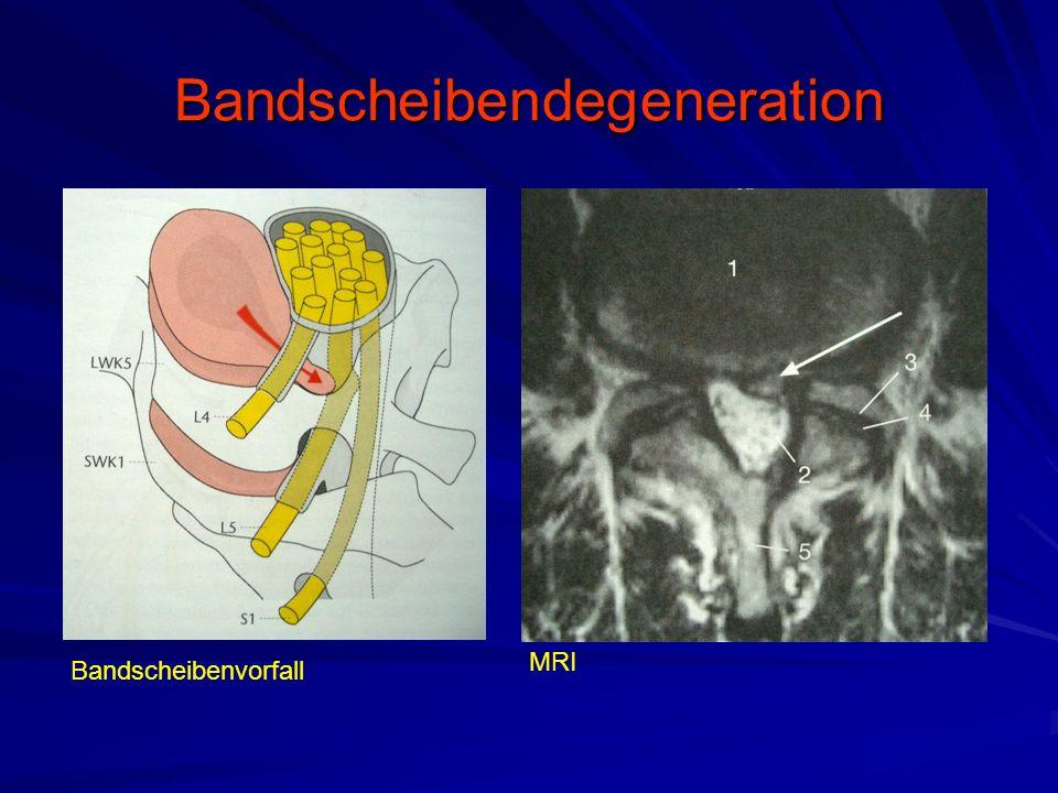 Bandscheibendegeneration Bandscheibenvorfall MRI