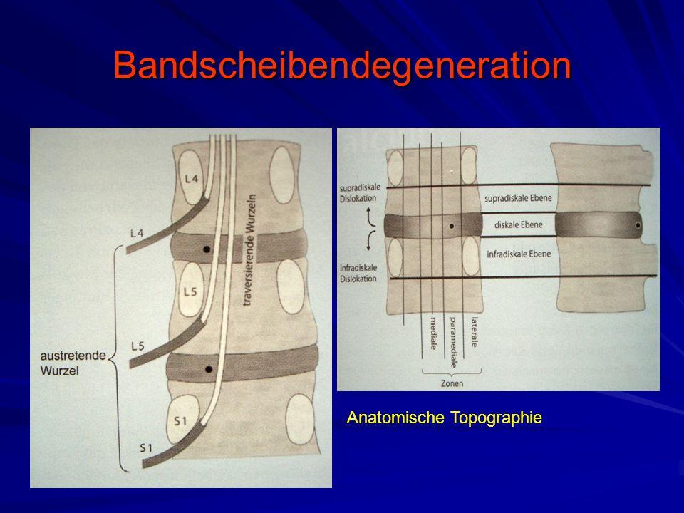 Bandscheibendegeneration Anatomische Topographie