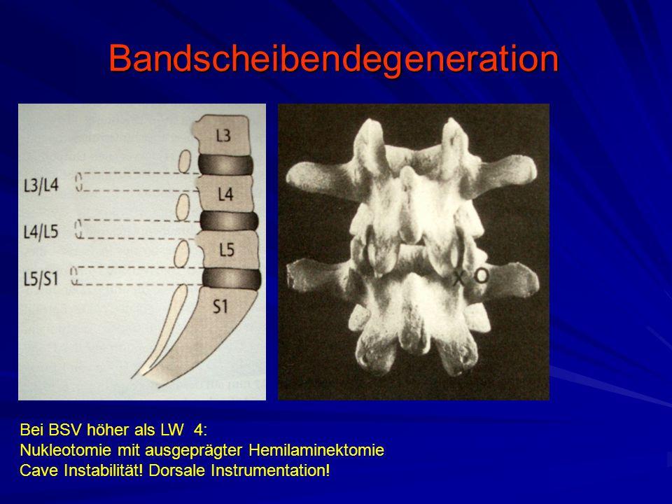 Bandscheibendegeneration Bei BSV höher als LW 4: Nukleotomie mit ausgeprägter Hemilaminektomie Cave Instabilität! Dorsale Instrumentation!