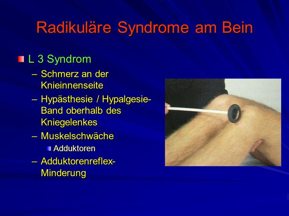Radikuläre Syndrome am Bein L 3 Syndrom –Schmerz an der Knieinnenseite –Hypästhesie / Hypalgesie- Band oberhalb des Kniegelenkes –Muskelschwäche Adduk