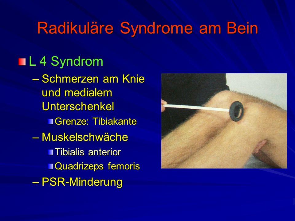 Radikuläre Syndrome am Bein L 4 Syndrom –Schmerzen am Knie und medialem Unterschenkel Grenze: Tibiakante –Muskelschwäche Tibialis anterior Quadrizeps