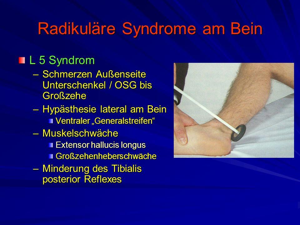 """Radikuläre Syndrome am Bein L 5 Syndrom –Schmerzen Außenseite Unterschenkel / OSG bis Großzehe –Hypästhesie lateral am Bein Ventraler """"Generalstreifen"""