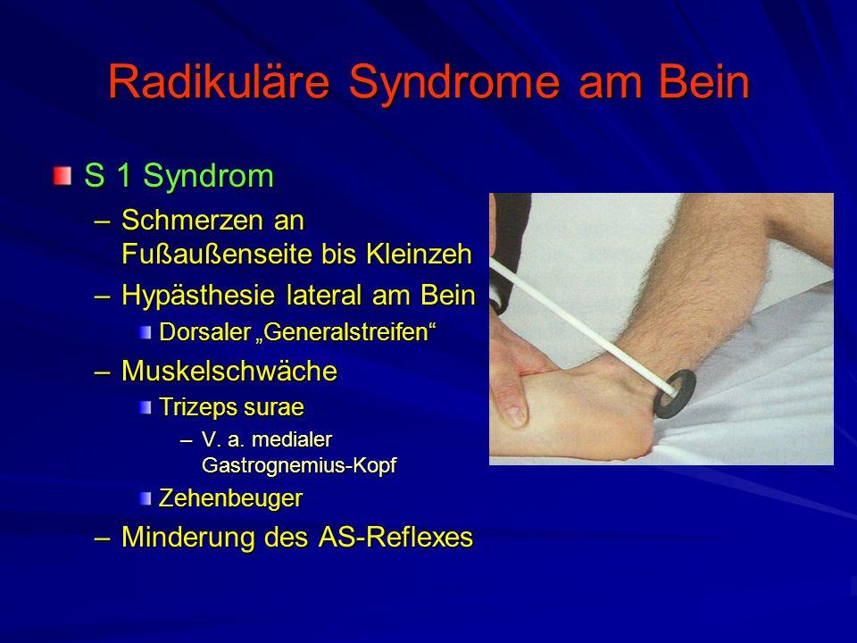 """Radikuläre Syndrome am Bein S 1 Syndrom –Schmerzen an Fußaußenseite bis Kleinzeh –Hypästhesie lateral am Bein Dorsaler """"Generalstreifen"""" –Muskelschwäc"""
