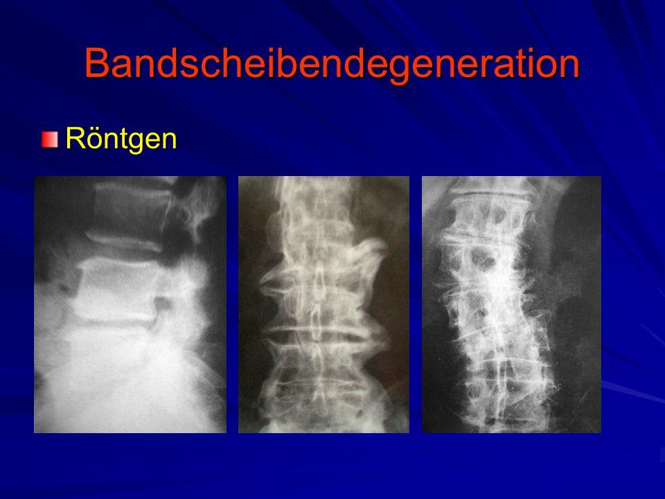 Bandscheibendegeneration Röntgen