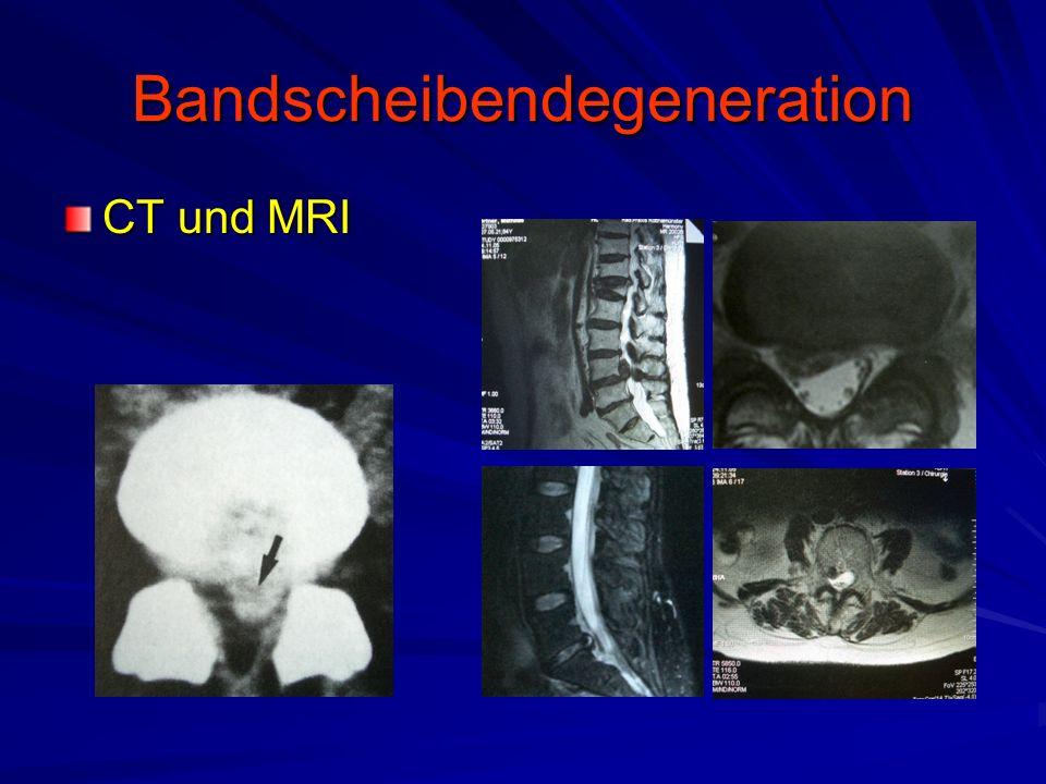 Bandscheibendegeneration CT und MRI