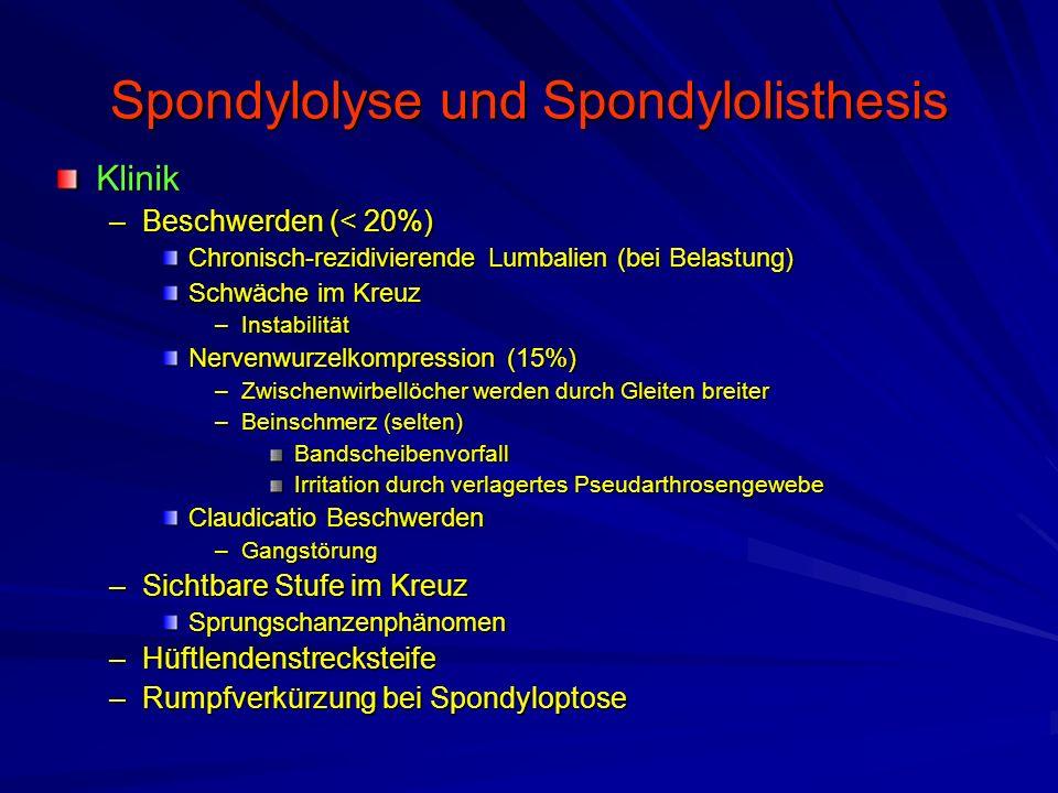 Spondylolyse und Spondylolisthesis Klinik –Beschwerden (< 20%) Chronisch-rezidivierende Lumbalien (bei Belastung) Schwäche im Kreuz –Instabilität Nerv