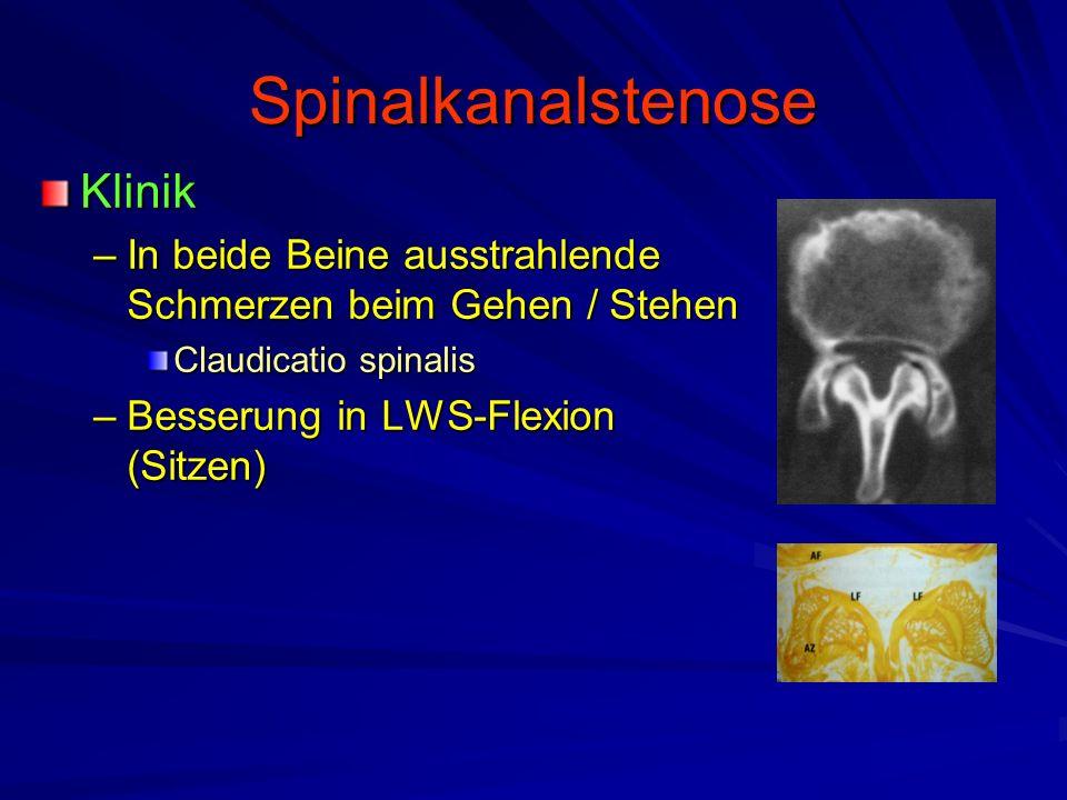 Spinalkanalstenose Klinik –In beide Beine ausstrahlende Schmerzen beim Gehen / Stehen Claudicatio spinalis –Besserung in LWS-Flexion (Sitzen)