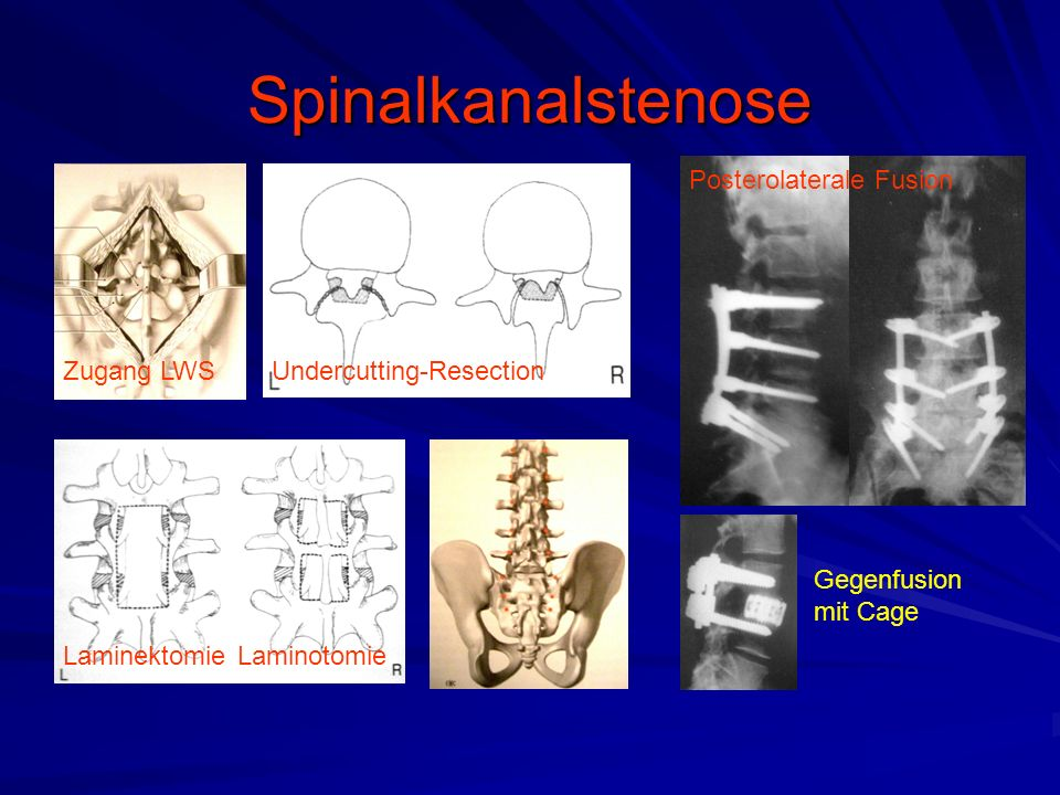 Spinalkanalstenose Zugang LWSUndercutting-Resection Laminektomie Posterolaterale Fusion Gegenfusion mit Cage Laminotomie