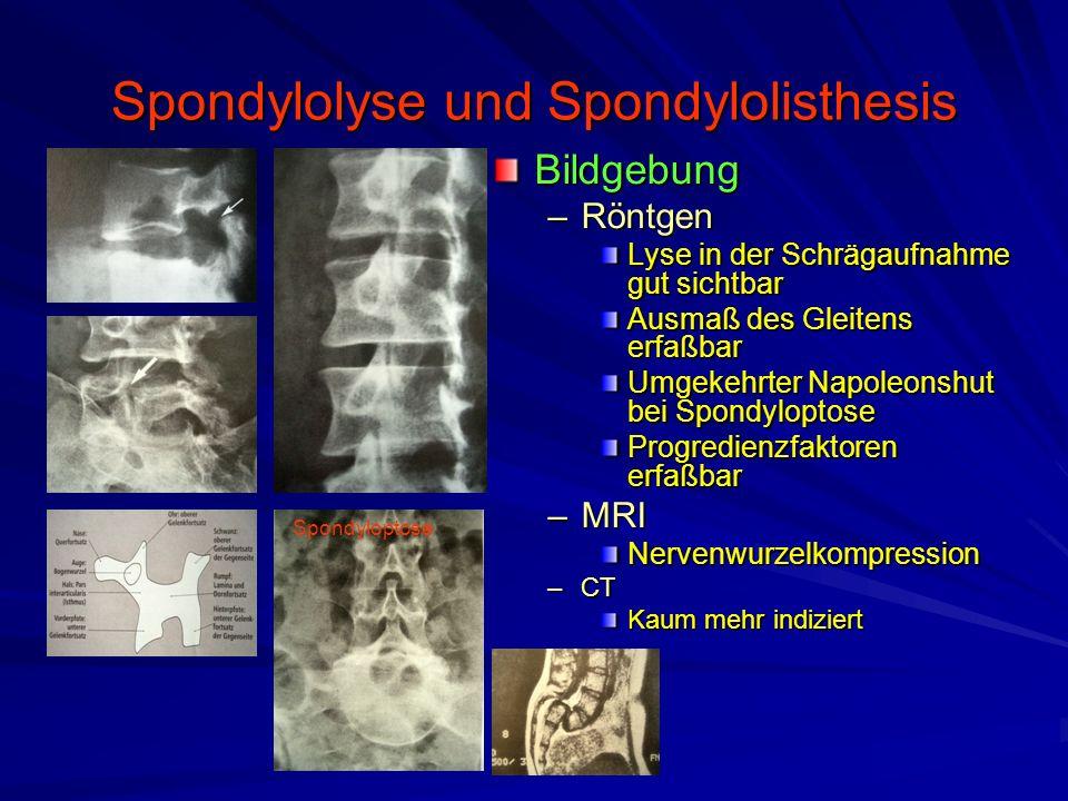 Spondylolyse und Spondylolisthesis Bildgebung –Röntgen Lyse in der Schrägaufnahme gut sichtbar Ausmaß des Gleitens erfaßbar Umgekehrter Napoleonshut b
