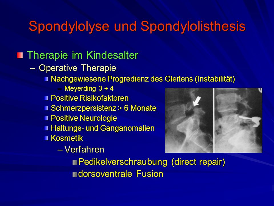 Spondylolyse und Spondylolisthesis Therapie im Kindesalter –Operative Therapie Nachgewiesene Progredienz des Gleitens (Instabilität) –Meyerding 3 + 4