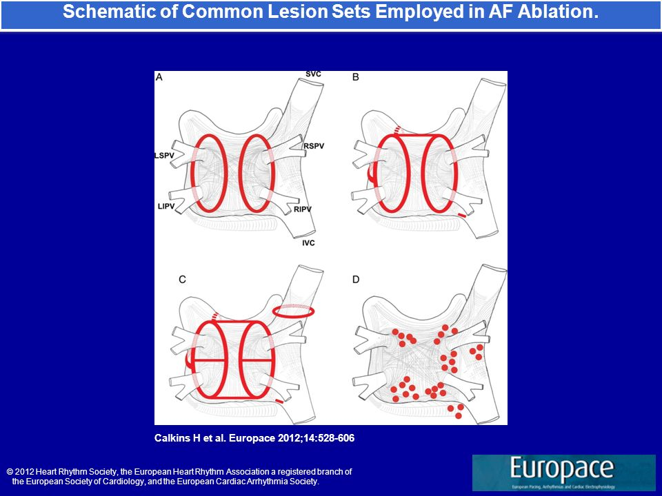 Schematic of Common Lesion Sets Employed in AF Ablation. Calkins H et al. Europace 2012;14:528-606 © 2012 Heart Rhythm Society, the European Heart Rhy