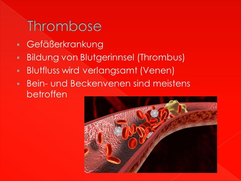  Gefäßerkrankung  Bildung von Blutgerinnsel (Thrombus)  Blutfluss wird verlangsamt (Venen)  Bein- und Beckenvenen sind meistens betroffen