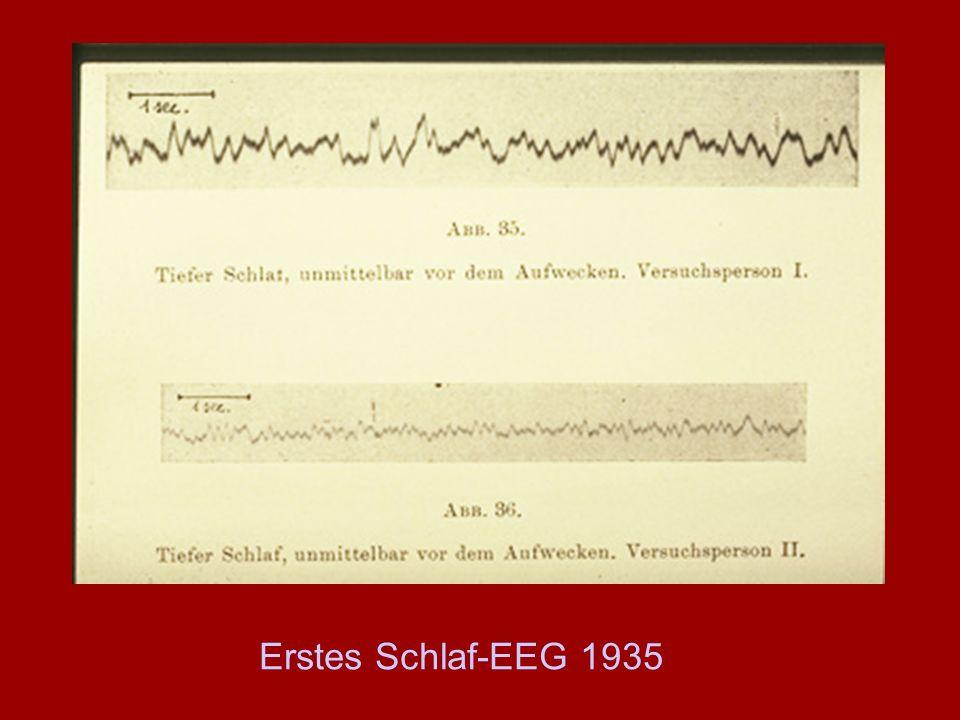 Erstes Schlaf-EEG 1935