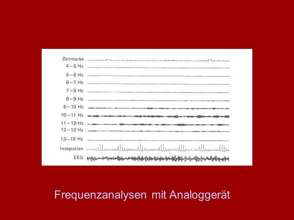 Frequenzanalysen mit Analoggerät