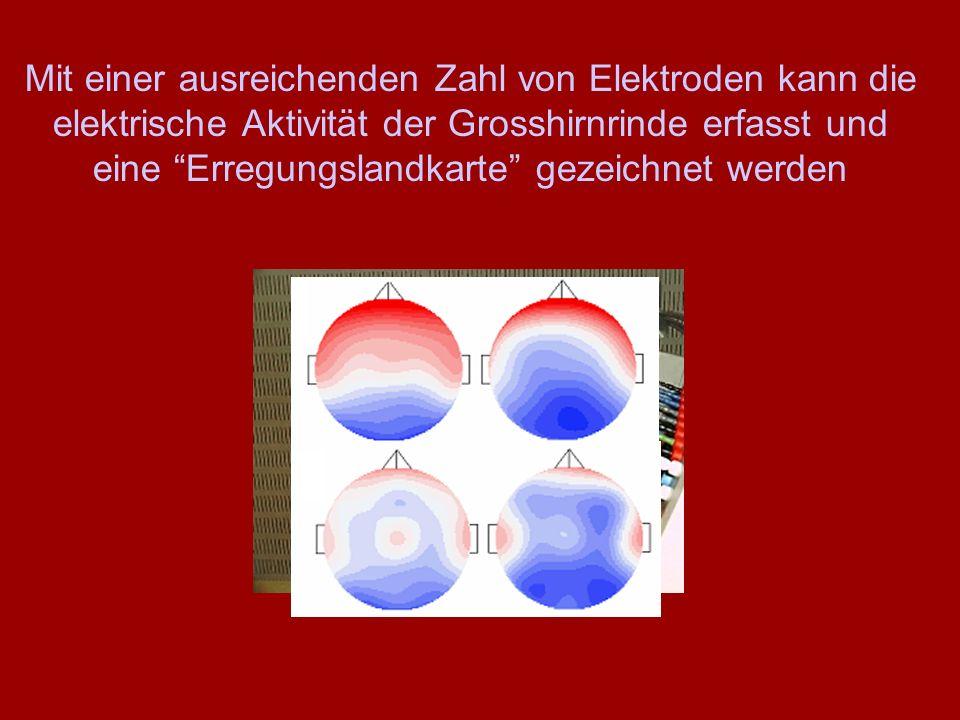"""Mit einer ausreichenden Zahl von Elektroden kann die elektrische Aktivität der Grosshirnrinde erfasst und eine """"Erregungslandkarte"""" gezeichnet werden"""