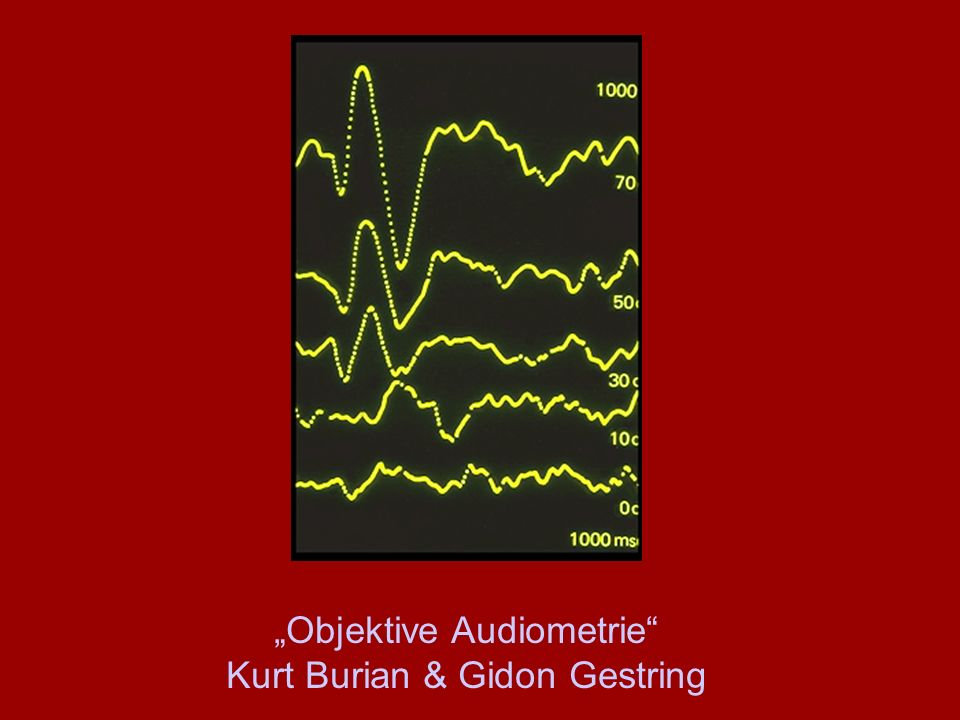 """Objektive Audiometrie"" Kurt Burian & Gidon Gestring"