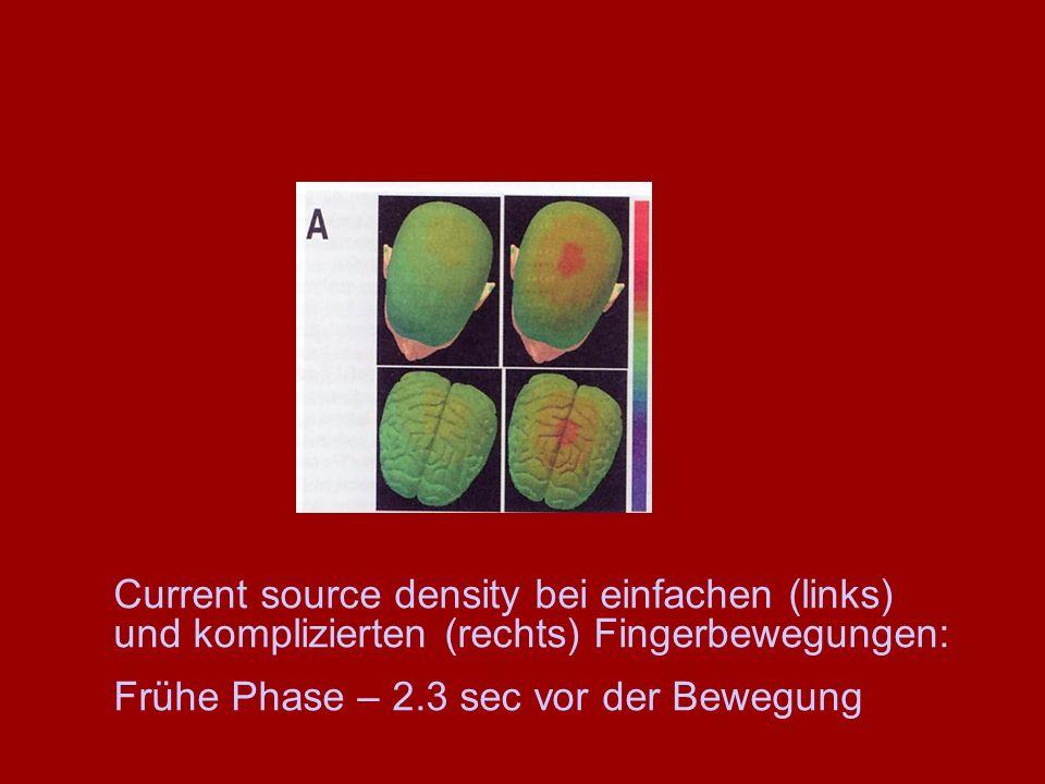 Current source density bei einfachen (links) und komplizierten (rechts) Fingerbewegungen: Frühe Phase – 2.3 sec vor der Bewegung