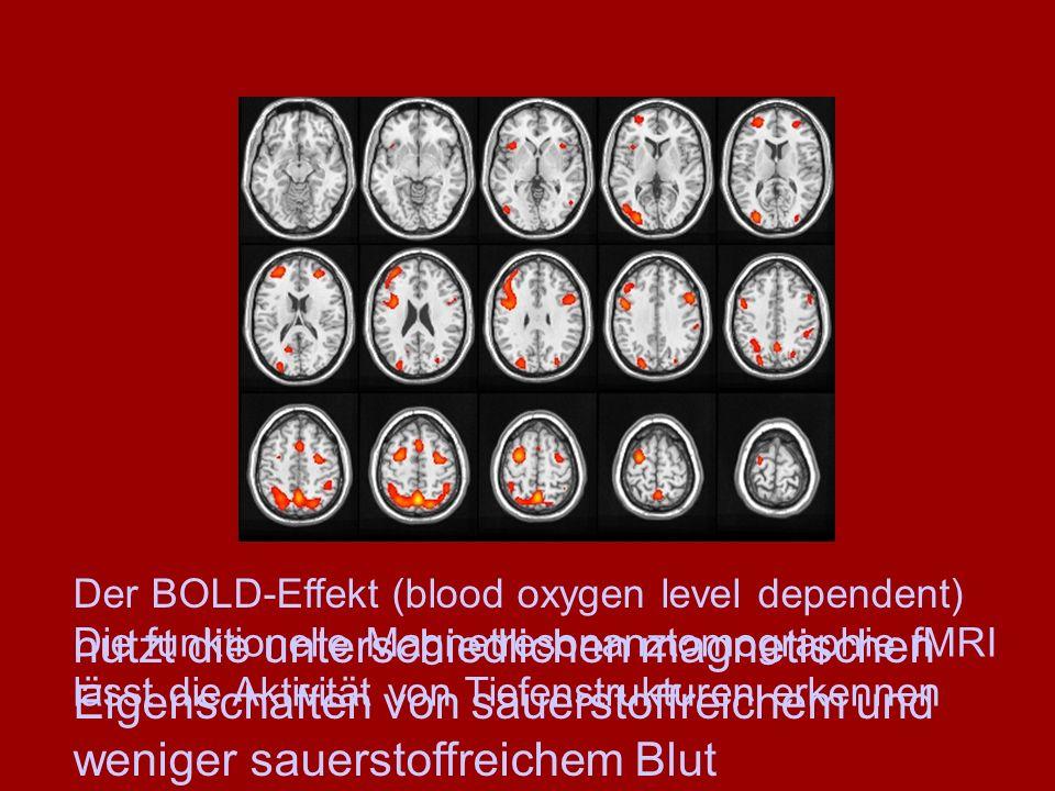 Die funktionelle Magnetresonanztomographie fMRI lässt die Aktivität von Tiefenstrukturen erkennen Der BOLD-Effekt (blood oxygen level dependent) nutzt