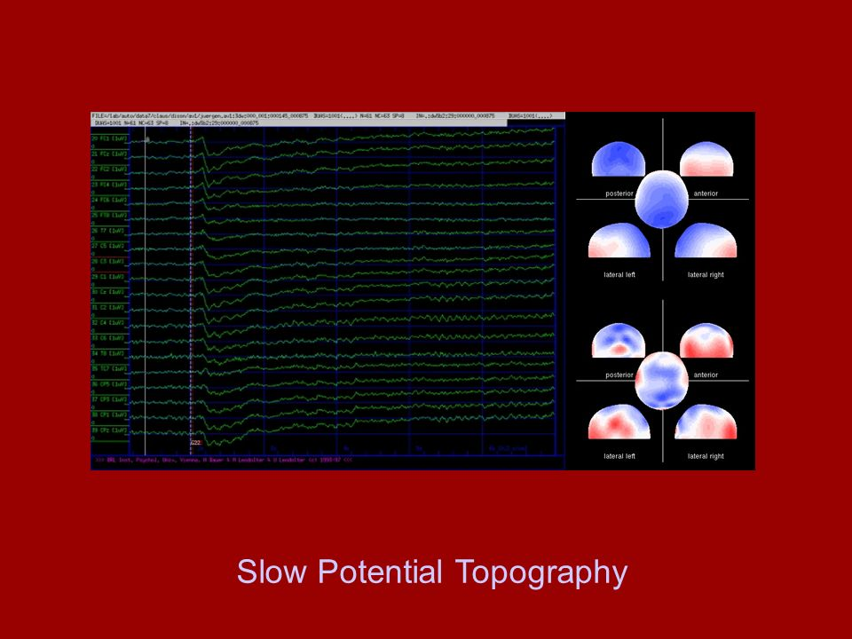 Slow Potential Topography