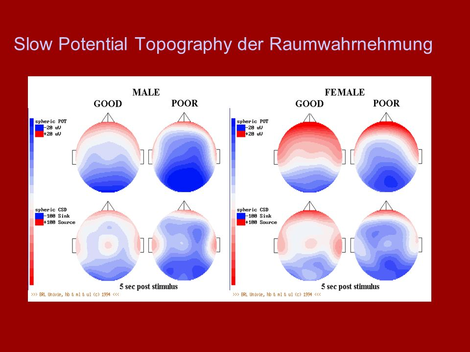 Slow Potential Topography der Raumwahrnehmung