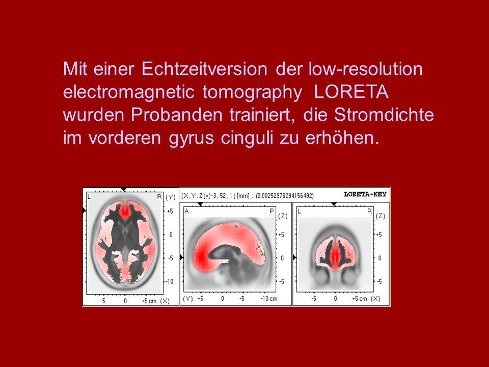 Mit einer Echtzeitversion der low-resolution electromagnetic tomography LORETA wurden Probanden trainiert, die Stromdichte im vorderen gyrus cinguli z