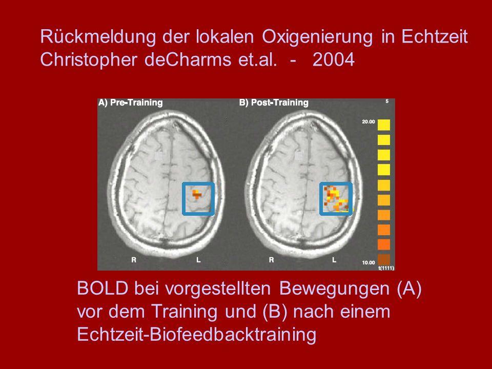 BOLD bei vorgestellten Bewegungen (A) vor dem Training und (B) nach einem Echtzeit-Biofeedbacktraining Rückmeldung der lokalen Oxigenierung in Echtzei