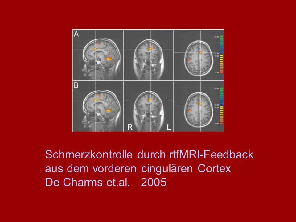 Schmerzkontrolle durch rtfMRI-Feedback aus dem vorderen cingulären Cortex De Charms et.al. 2005