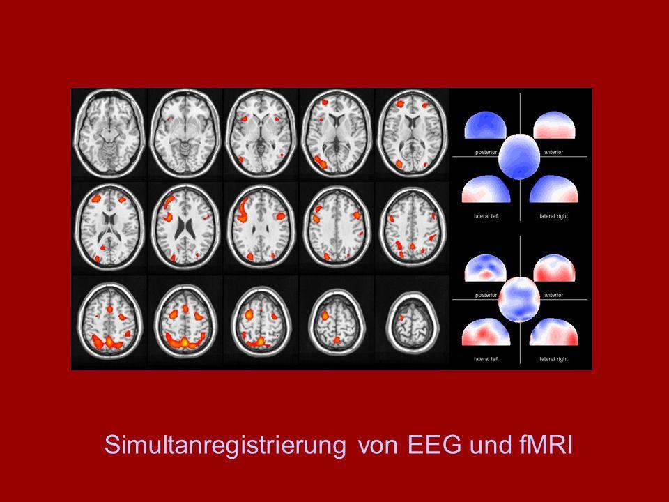 Simultanregistrierung von EEG und fMRI