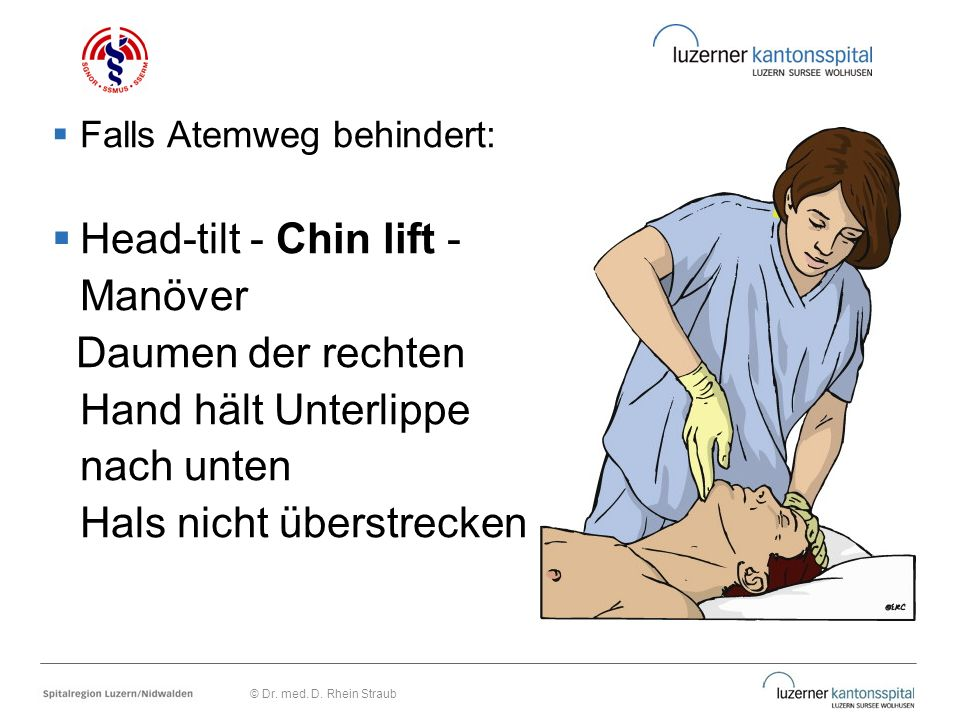 Falls Atemweg behindert:  Head-tilt - Chin lift - Manöver Daumen der rechten Hand hält Unterlippe nach unten Hals nicht überstrecken © Dr. med. D.