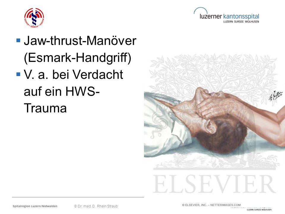  Jaw-thrust-Manöver (Esmark-Handgriff)  V. a. bei Verdacht auf ein HWS- Trauma © Dr. med. D. Rhein Straub