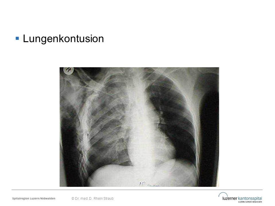  Lungenkontusion © Dr. med. D. Rhein Straub