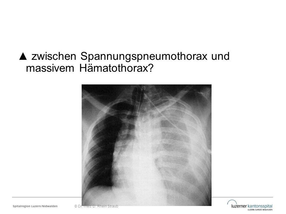 ▲ zwischen Spannungspneumothorax und massivem Hämatothorax? © Dr. med. D. Rhein Straub
