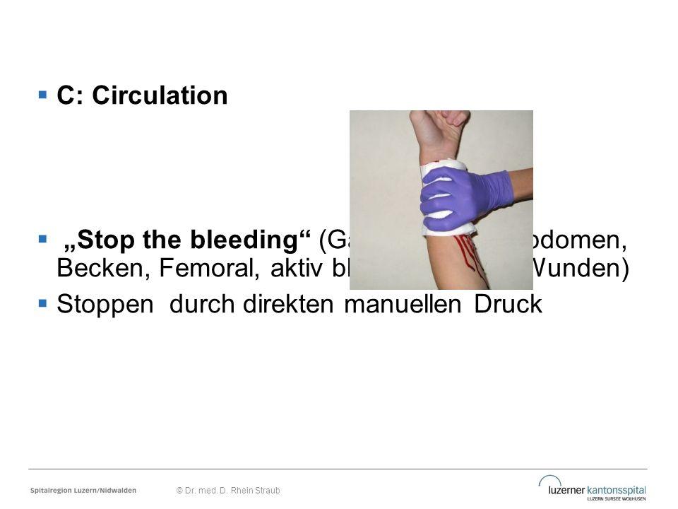 """ C: Circulation  """"Stop the bleeding"""" (Galea, Thorax, Abdomen, Becken, Femoral, aktiv blutende offene Wunden)  Stoppen durch direkten manuellen Druc"""