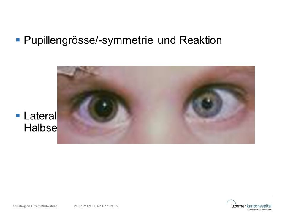  Pupillengrösse/-symmetrie und Reaktion  Lateralisierungszeichen (Déviation, Halbseitenlähmung) © Dr. med. D. Rhein Straub