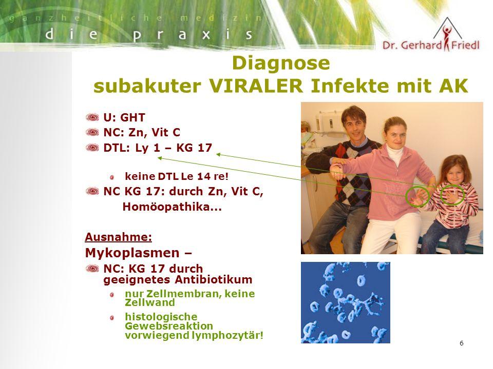6 Diagnose subakuter VIRALER Infekte mit AK U: GHT NC: Zn, Vit C DTL: Ly 1 – KG 17 keine DTL Le 14 re.