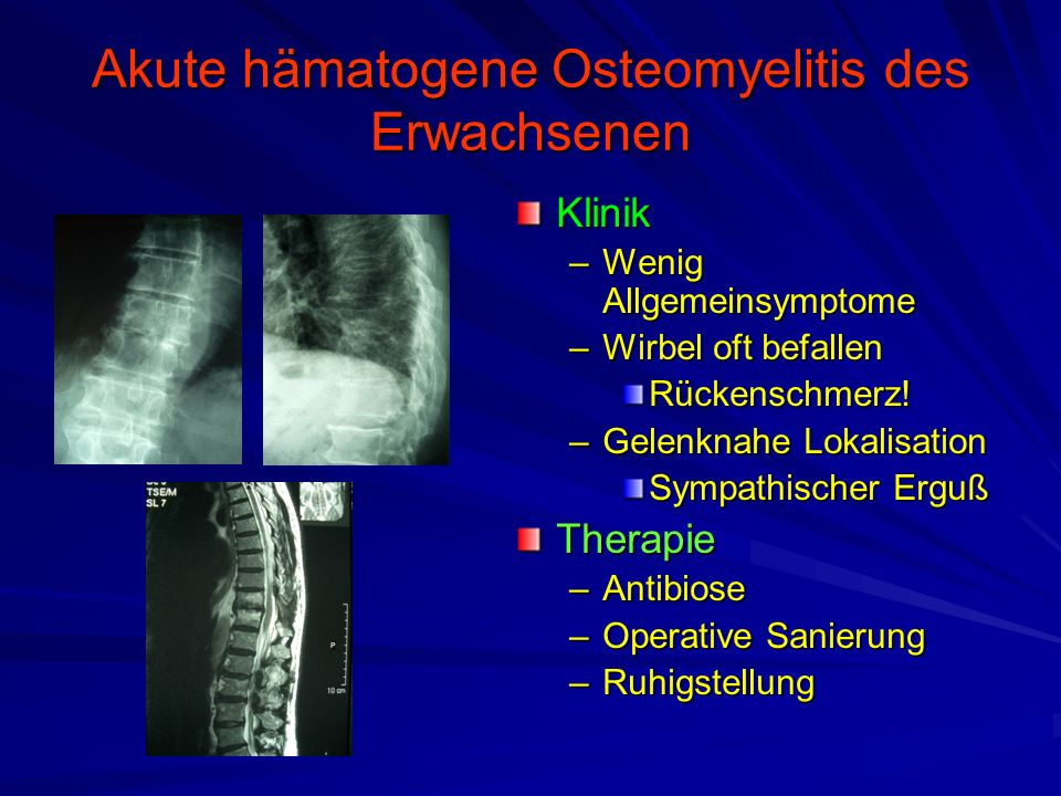 Akute hämatogene Osteomyelitis des Erwachsenen Klinik –Wenig Allgemeinsymptome –Wirbel oft befallen Rückenschmerz.