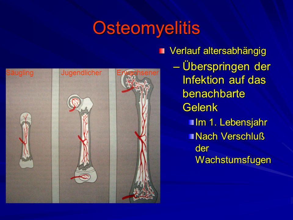 Osteomyelitis Verlauf altersabhängig –Überspringen der Infektion auf das benachbarte Gelenk Im 1.