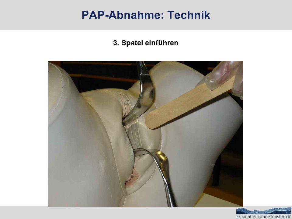 PAP-Abnahme: Technik 3. Spatel einführen