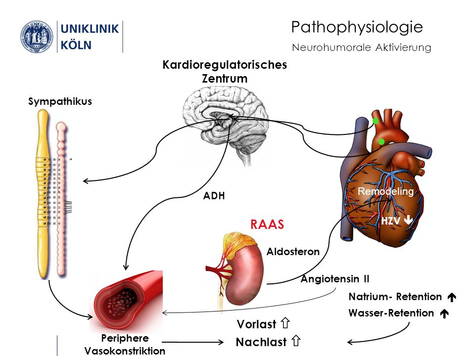 Pathophysiologie HZV  Kardioregulatorisches Zentrum Sympathikus Periphere Vasokonstriktion ADH Natrium- Retention  Wasser-Retention  Neurohumorale Aktivierung Angiotensin II Aldosteron RAAS Remodeling Nachlast  Vorlast 