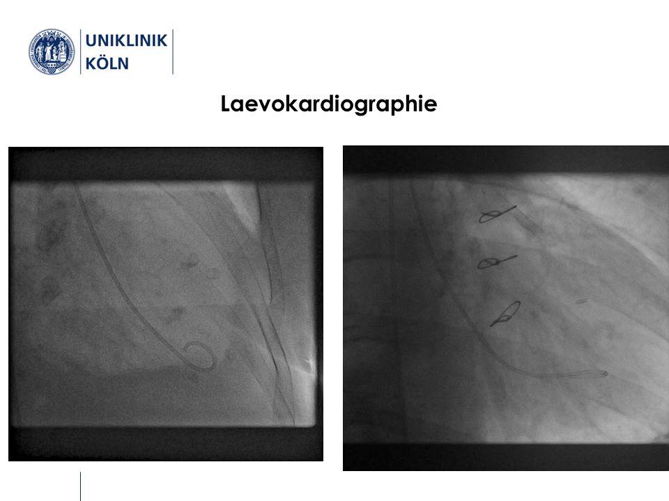Diagnostik Laevokardiographie