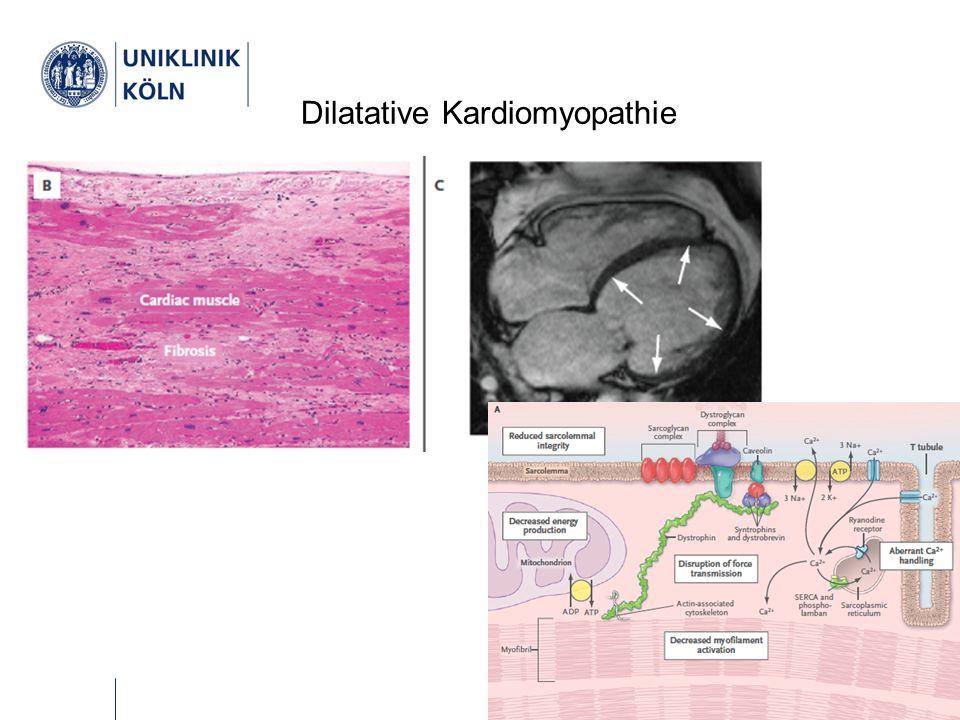 Implantierbarer Cardioverter Defibrillator (ICD) 50 % der Patienten versterben am plötzlichen Herztod .