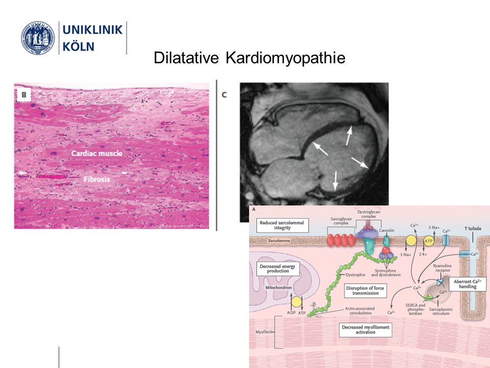 Therapie Chronische Herzinsuffizienz NYHA INYHA IINYHA IIINYHA IV ACE-Hemmer (Digitalis)