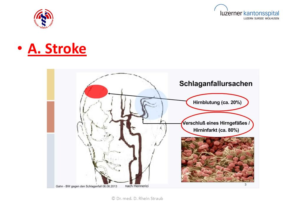 A. Stroke © Dr. med. D. Rhein Straub